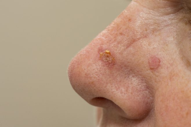 CHMP recommends approval of Klisyri for actinic keratosis – Almirall