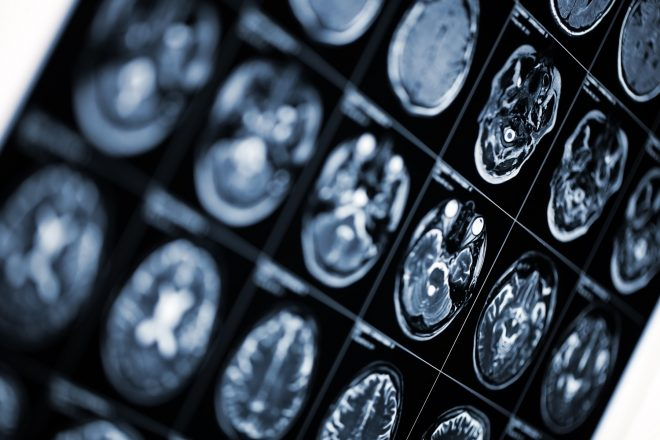 Simple diagnostic tool predicts individual risk of Alzheimer's