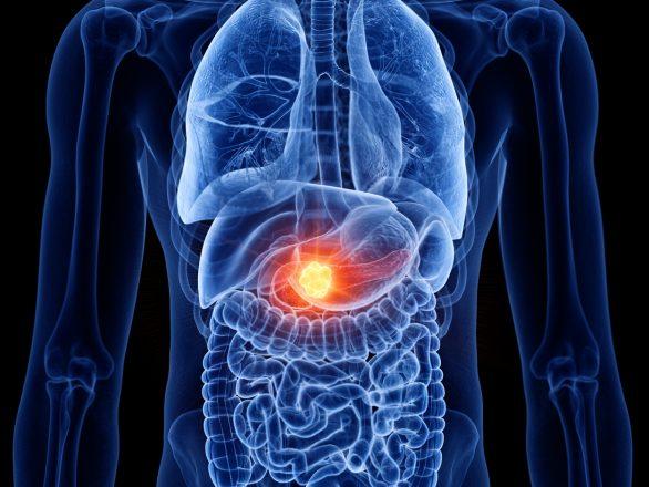 Targeted drug found effective in thwarting pancreatic tumors