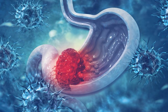 Merck Inc provides update on Keytruda indication in third-line gastric cancer in the US