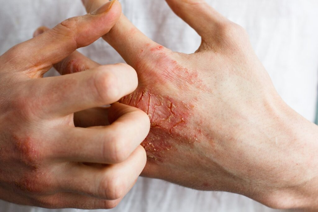 UK MHRA grants marketing authorisation for Cibinqo for adults and adolescents with moderate to severe atopic dermatitis – Pfizer