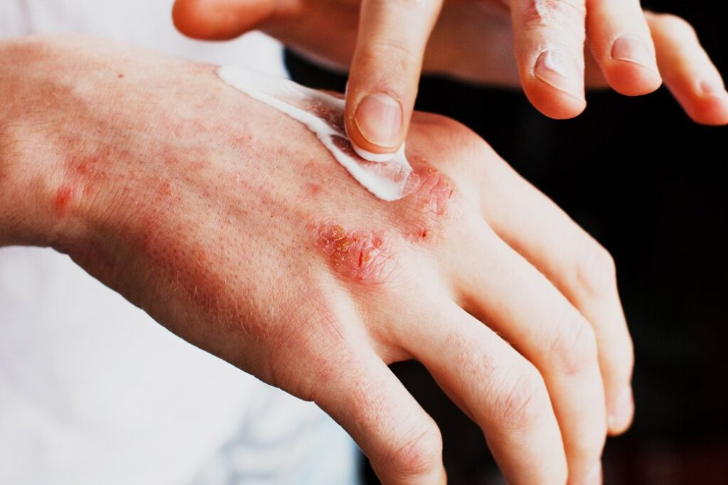 FDA approves Opzelura cream for mild to moderate atopic dermatitis – Incyte